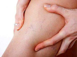 Медики рассказали о нехарактерных симптомах варикоза