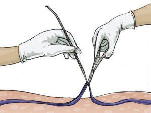 Тромбэктомия. Как проводится операция?