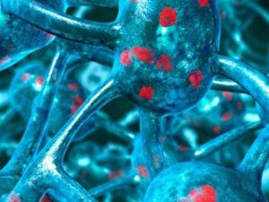 Болезнь Паркинсона может начинаться в кишечнике
