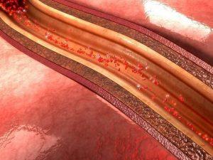 Эти симптомы могут указывать на проблемы с артериями