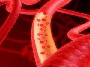 Названы эффективные продукты для профилактики тромбоза