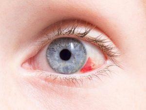 Красное пятно в глазу – причины