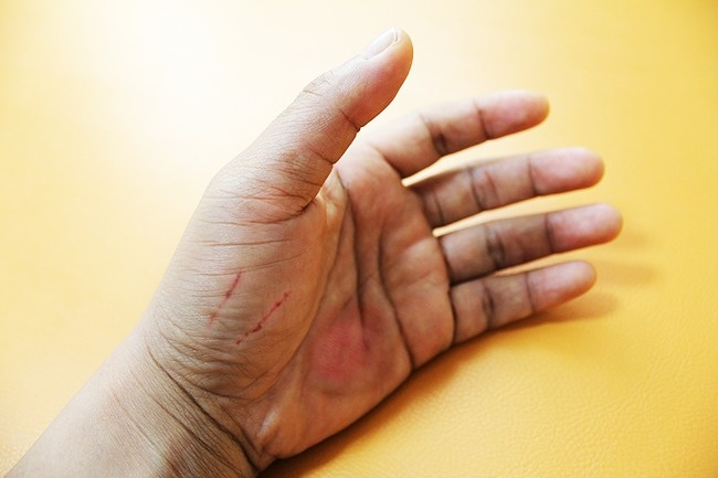 О каких серьезных заболеваниях могут рассказать наши руки