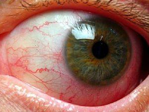 Вазопатия – болезнь микро и макроциркуляторного русла