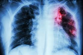 Лучший способ вылечить туберкулез – рано его обнаружить.
