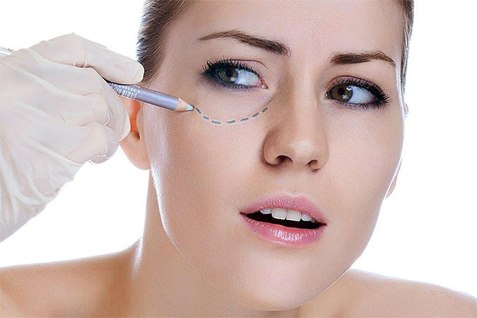 Блефаропластика или косметическая коррекция лица: где сделать процедуру?