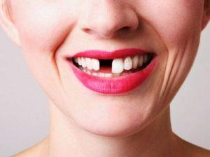 Потеря зубов у женщин связана с гипертонией