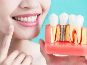 Протезирование зубов. Хирургическая процедура при имплантации зубов