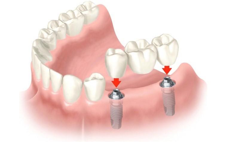 Протезирование зубов. Зубные имплантаты и мостовидные протезы