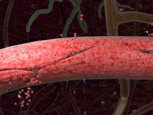 Протекающие сосуды в мозге грозят старческим слабоумием