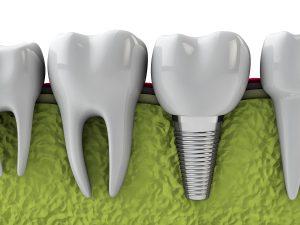 Восстановление зубов в клинике «Имплант Сити»: особенности, запись к врачу, диагностика и лечение