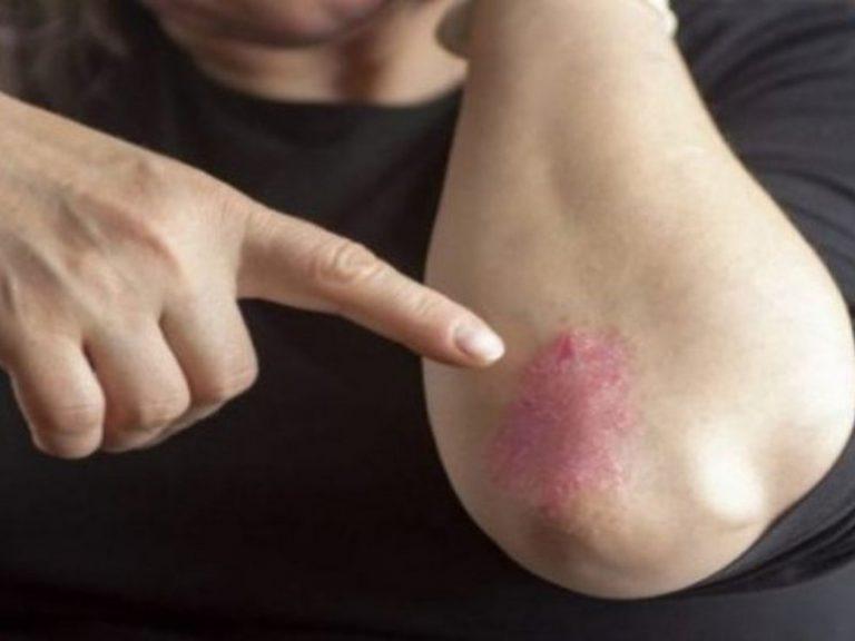 Лечение псориаза защищает от инфаркта