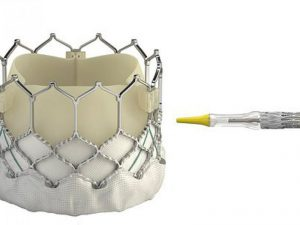 Клапан аорты смогут менять без операции на открытом сердце
