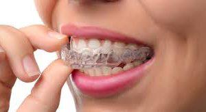 Современное выравнивание зубов