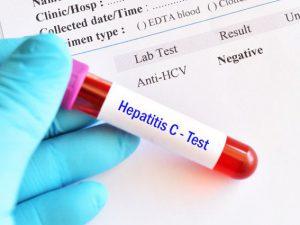 Лечение гепатита С: особенности и эффективность медикаментозного воздействия