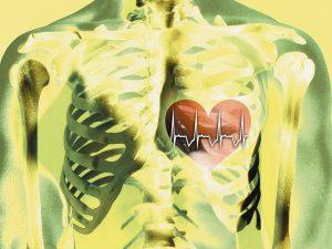 Назван способ профилактики сердечного приступа