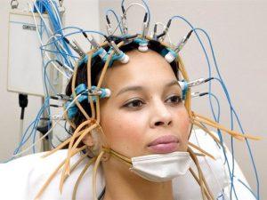 Электроэнцефалография (ЭЭГ, энцефалограмма)