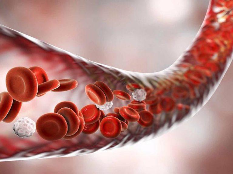 Всё о тромбозе: откуда берутся тромбы и что с этим делать