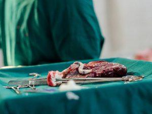 Плацента может использоваться для лечения инфаркта