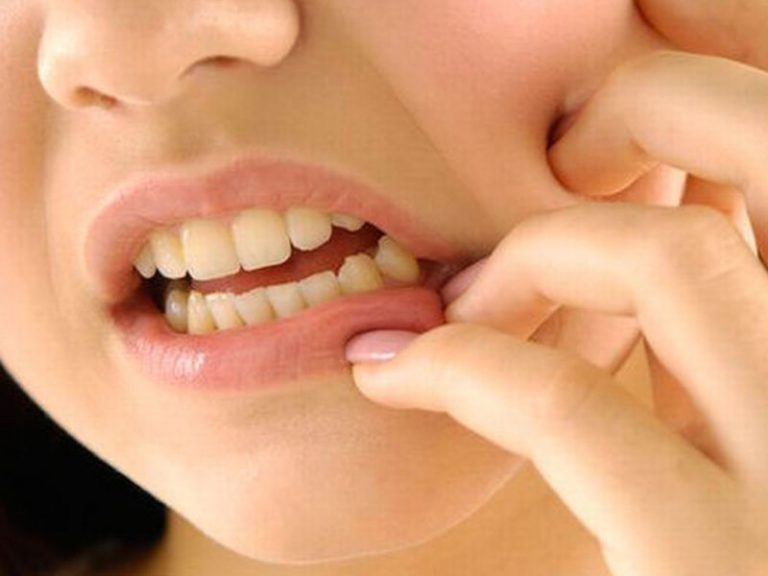 Бактерии из полости рта влияют на возникновение инфаркта миокарда