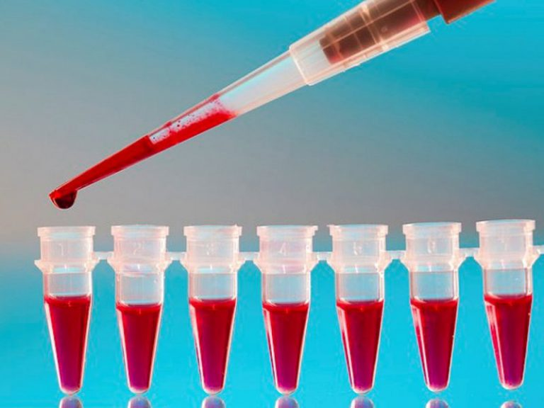 Прозрачный пластырь из клеток крови защитит диабетиков от ампутаций