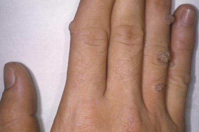 «Дарус»: здоровая кожа без бородавок