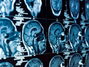 Болезнь Паркинсона собираются диагностировать как можно раньше