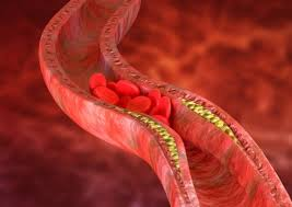 Первые признаки тромба: когда надо бежать к врачу