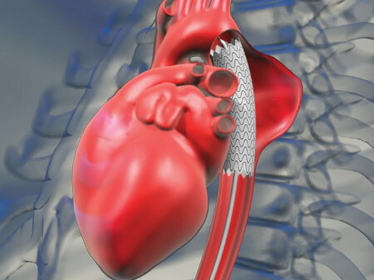 Поздняя медпомощь и нетипичные симптомы: эксперт назвал причины высокой смертности при инфаркте