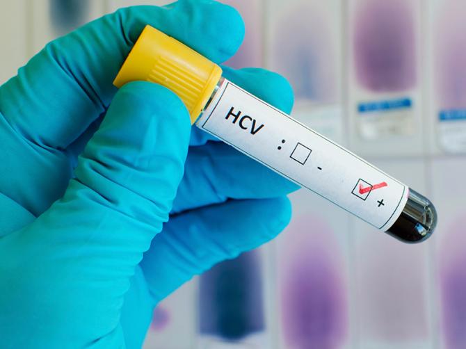 Эффективные лекарственные препараты от гепатита С: особенности, преимущества, нюансы приема