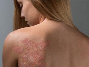 Псориаз: война и перемирие с собственной кожей