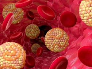 8 продуктов, которые прочистят ваши артерии и защитят от атеросклероза