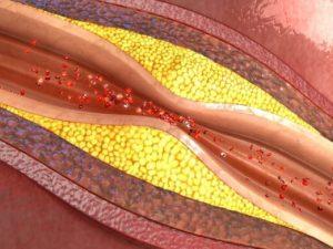 Врачи назвали главные признаки забитых артерий