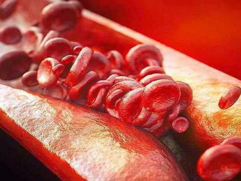 Кардиолог назвала категории людей, которым нужно провериться на атеросклероз