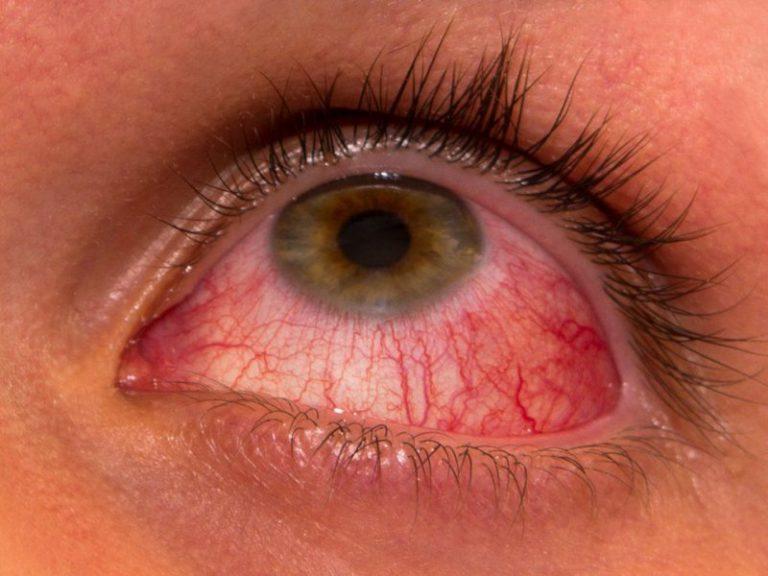 Заболевания глаз, связанные с диабетом, являются основной причиной слепоты. Но прочесть об этом негде