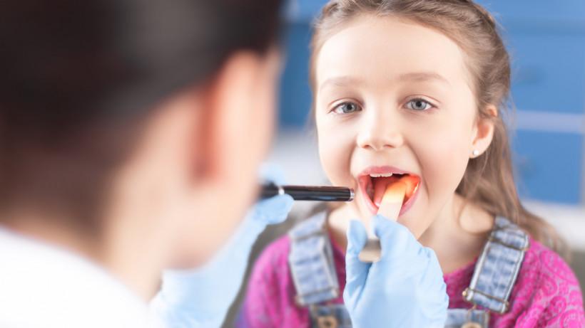Герпетическая ангина у детей – высокая температура – первый симптом