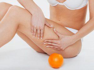 Особенности лечения целлюлита