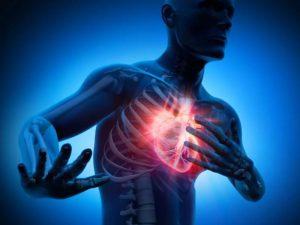 Инфаркт: его ранние предупредительные знаки и особенности