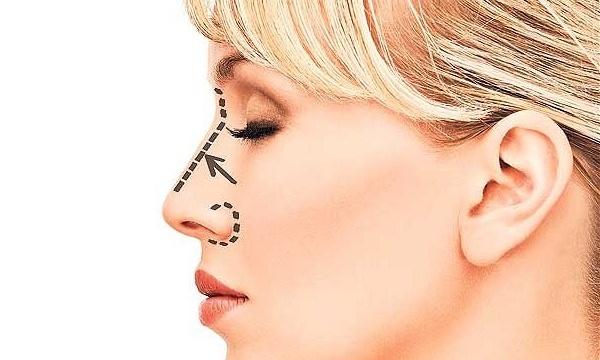 Коррекция носа: зачем и для кого нужна?