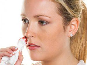 Кровь из носа – врач рассказывает, что означает и как себе помочь