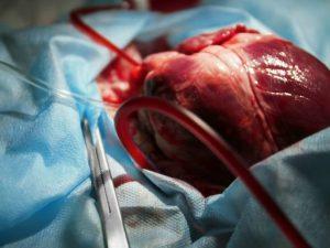 Врачи пересадили сердце пациентке с редкой генетической мутацией