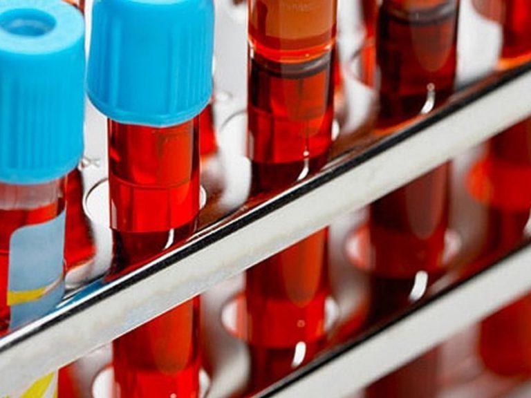 Низкий уровень лимфоцитов в крови может быть симптомом, предвещающим смерть