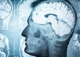 Неврологи смогли усовершенствовать лекарство против болезни Альцгеймера