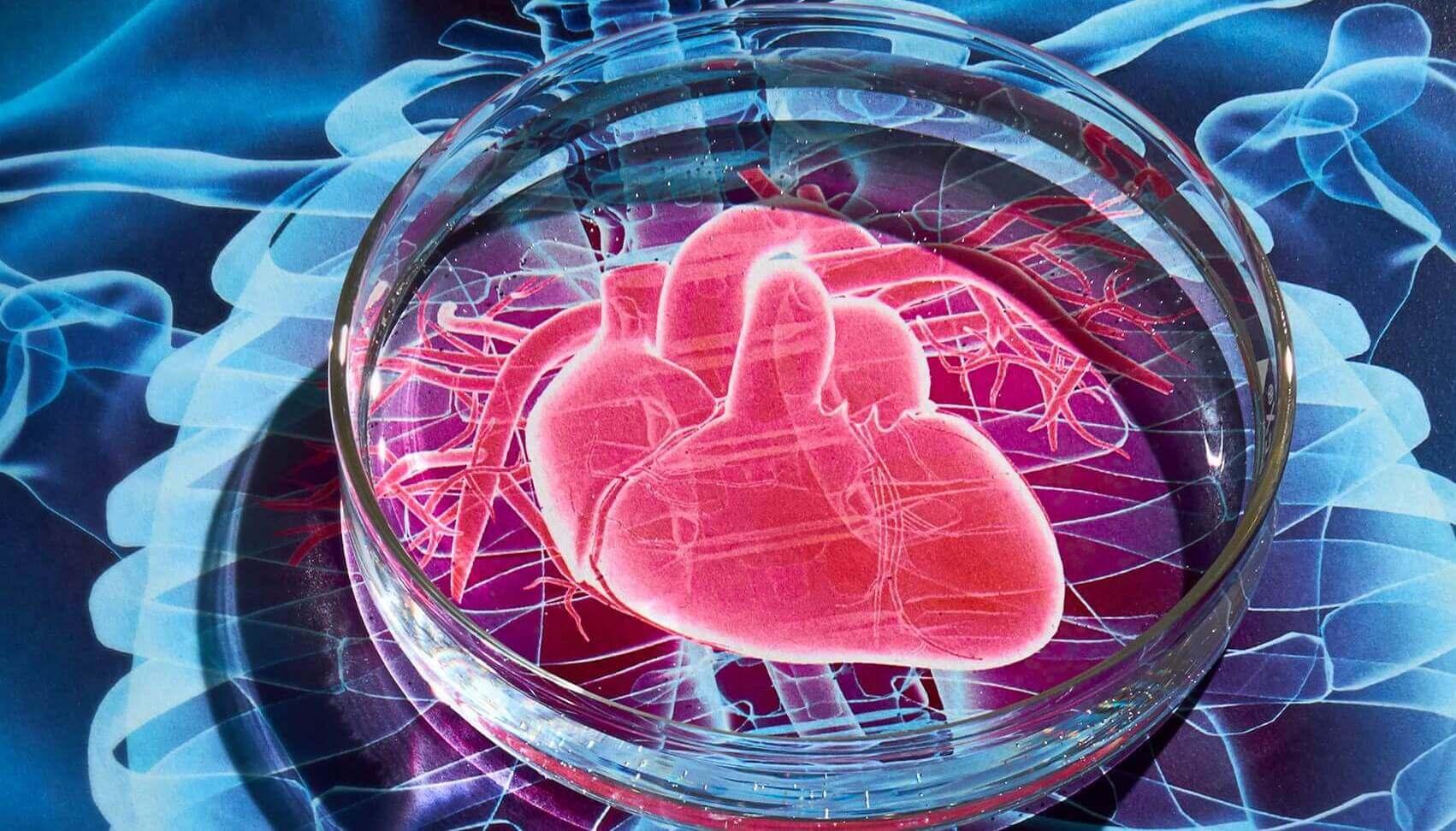 Стволовые клетки помогут после инфарктов