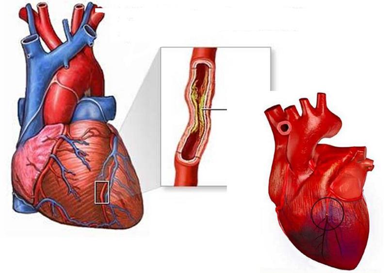 Ишемическая болезнь сердца. Основные ее проявления и суть лечения
