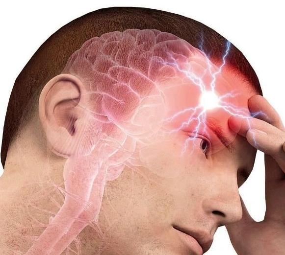 Микроинсульт как предвестник аварии головного мозга: как распознать смертельную хворь и спастись