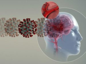 Коронавирус увеличивает риск инсультов у молодых людей