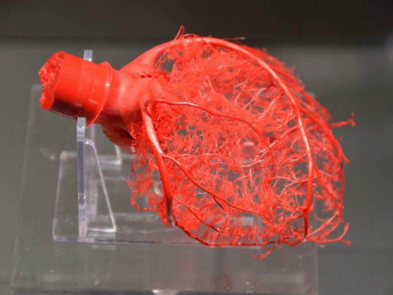 Имплант укрепит слабеющие сердца