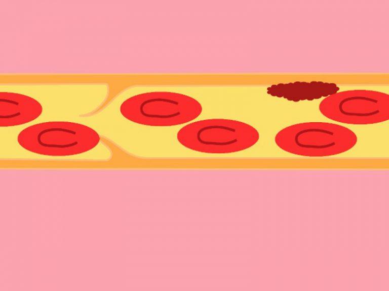 Ученые разработали инструмент, определяющий причину тромбов