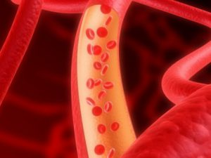 4 народных средства для очищения сосудов и профилактики атеросклероза